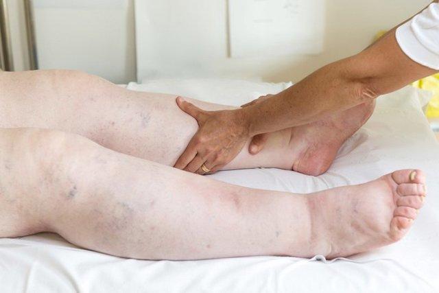 отеки ног у престарелых