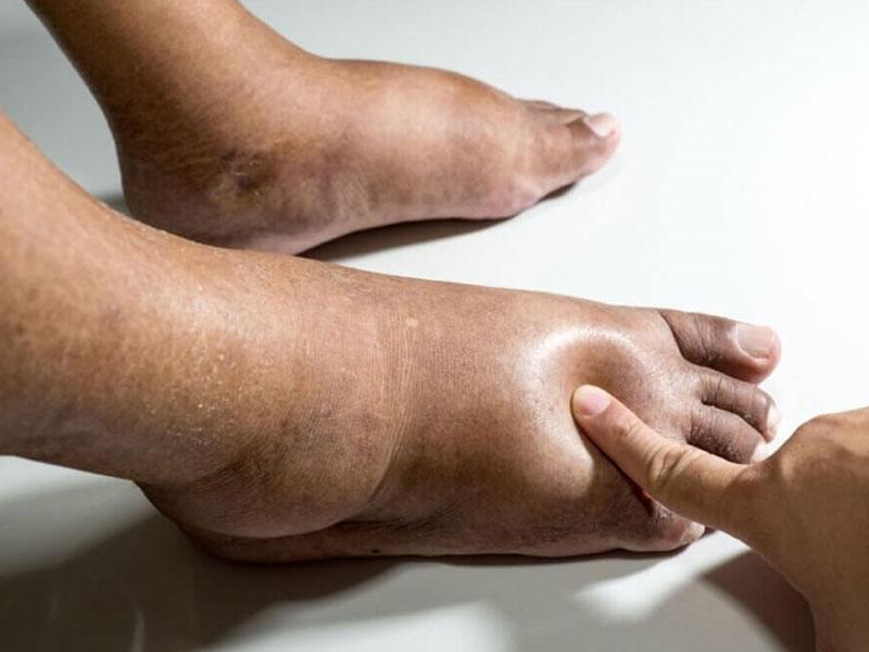 Отек ног у людей пожилого возраста